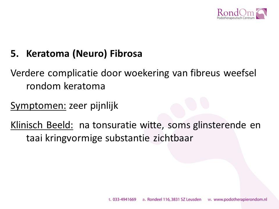5.Keratoma (Neuro) Fibrosa Verdere complicatie door woekering van fibreus weefsel rondom keratoma Symptomen: zeer pijnlijk Klinisch Beeld: na tonsuratie witte, soms glinsterende en taai kringvormige substantie zichtbaar