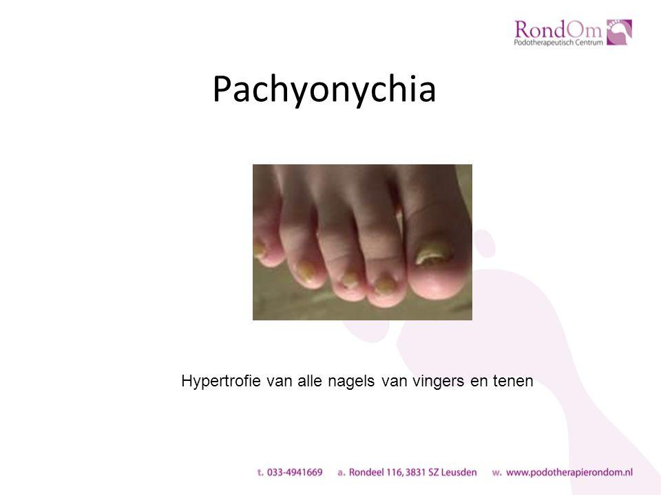 Pachyonychia Hypertrofie van alle nagels van vingers en tenen