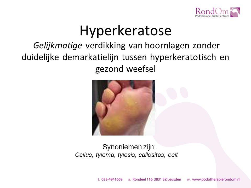 Hyperkeratose Gelijkmatige verdikking van hoornlagen zonder duidelijke demarkatielijn tussen hyperkeratotisch en gezond weefsel Synoniemen zijn: Callus, tyloma, tylosis, callositas, eelt