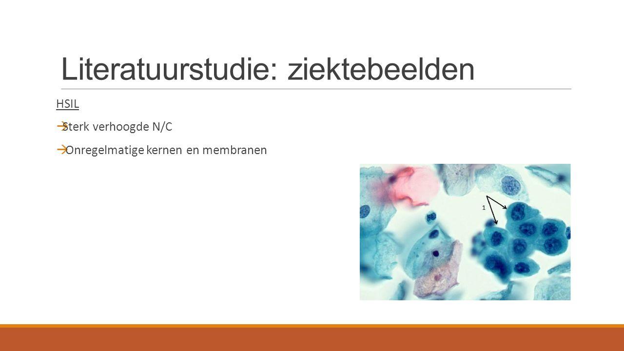 Literatuurstudie: ziektebeelden HSIL  Sterk verhoogde N/C  Onregelmatige kernen en membranen