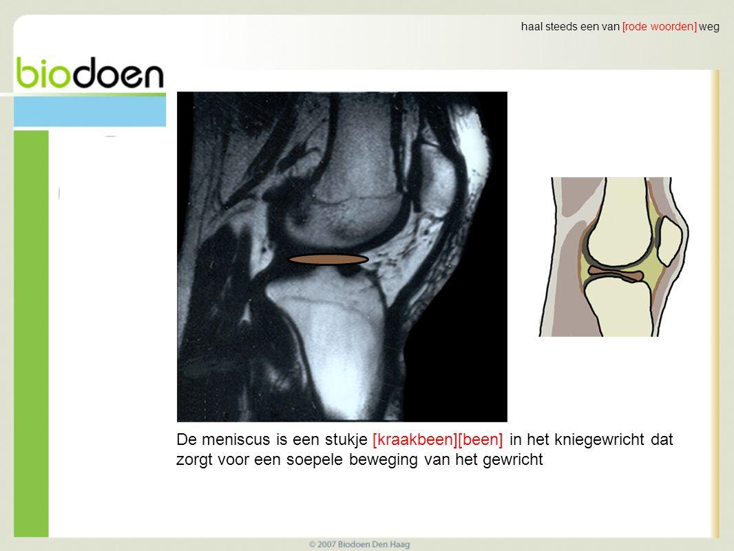 haal steeds een van [rode woorden] weg De meniscus is een stukje [kraakbeen][been] in het kniegewricht dat zorgt voor een soepele beweging van het gewricht