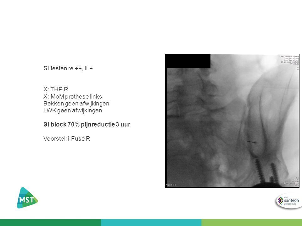 SI testen re ++, li + X: THP R X: MoM prothese links Bekken geen afwijkingen LWK geen afwijkingen SI block 70% pijnreductie 3 uur Voorstel: i-Fuse R