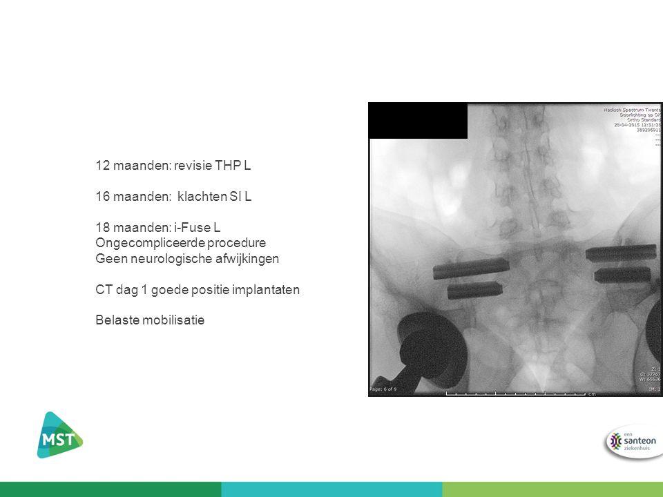 12 maanden: revisie THP L 16 maanden: klachten SI L 18 maanden: i-Fuse L Ongecompliceerde procedure Geen neurologische afwijkingen CT dag 1 goede posi