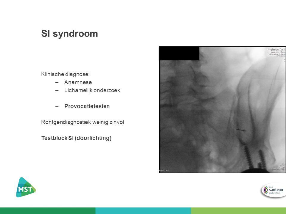 SI syndroom Klinische diagnose: –Anamnese –Lichamelijk onderzoek –Provocatietesten Rontgendiagnostiek weinig zinvol Testblock SI (doorlichting)