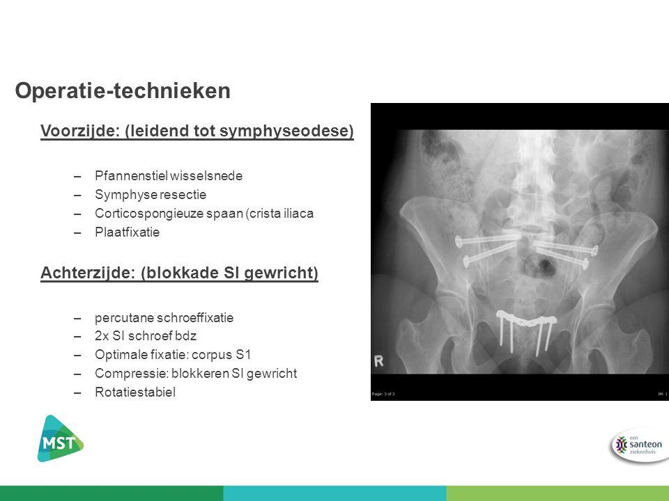 Operatie-technieken Voorzijde: (leidend tot symphyseodese) –Pfannenstiel wisselsnede –Symphyse resectie –Corticospongieuze spaan (crista iliaca –Plaat