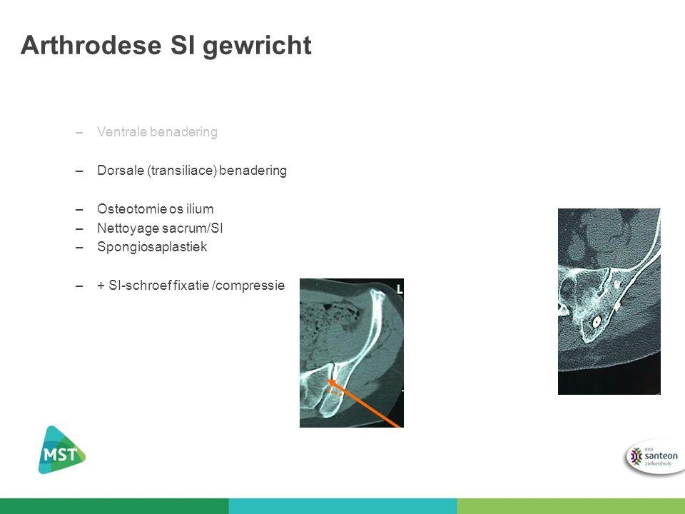 Arthrodese SI gewricht –Ventrale benadering –Dorsale (transiliace) benadering –Osteotomie os ilium –Nettoyage sacrum/SI –Spongiosaplastiek –+ SI-schro