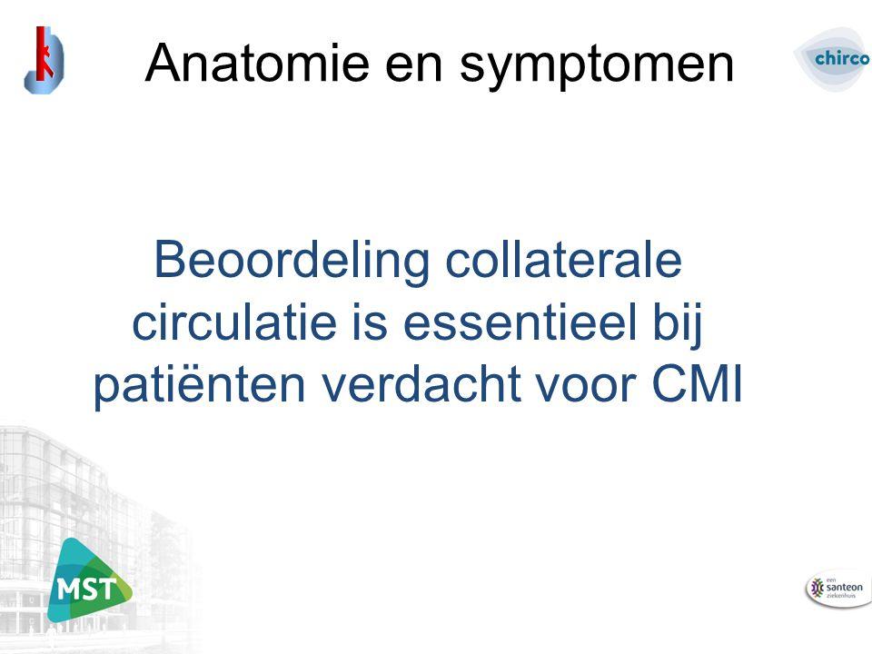 Beoordeling collaterale circulatie is essentieel bij patiënten verdacht voor CMI Anatomie en symptomen