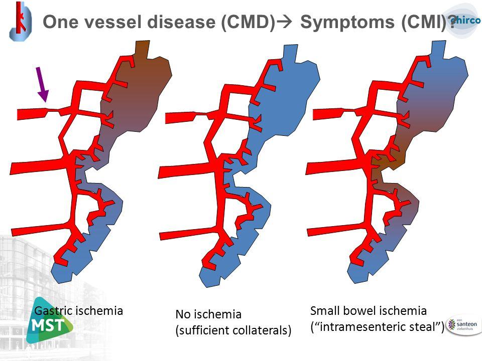 "One vessel disease (CMD)  Symptoms (CMI)? Gastric ischemiaNo ischemia (sufficient collaterals) Small bowel ischemia (""intramesenteric steal"")"