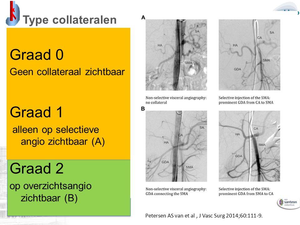 Type collateralen Graad 0 Geen collateraal zichtbaar Graad 1 alleen op selectieve angio zichtbaar (A) Graad 2 op overzichtsangio zichtbaar (B) Petersen AS van et al, J Vasc Surg 2014;60:111-9.