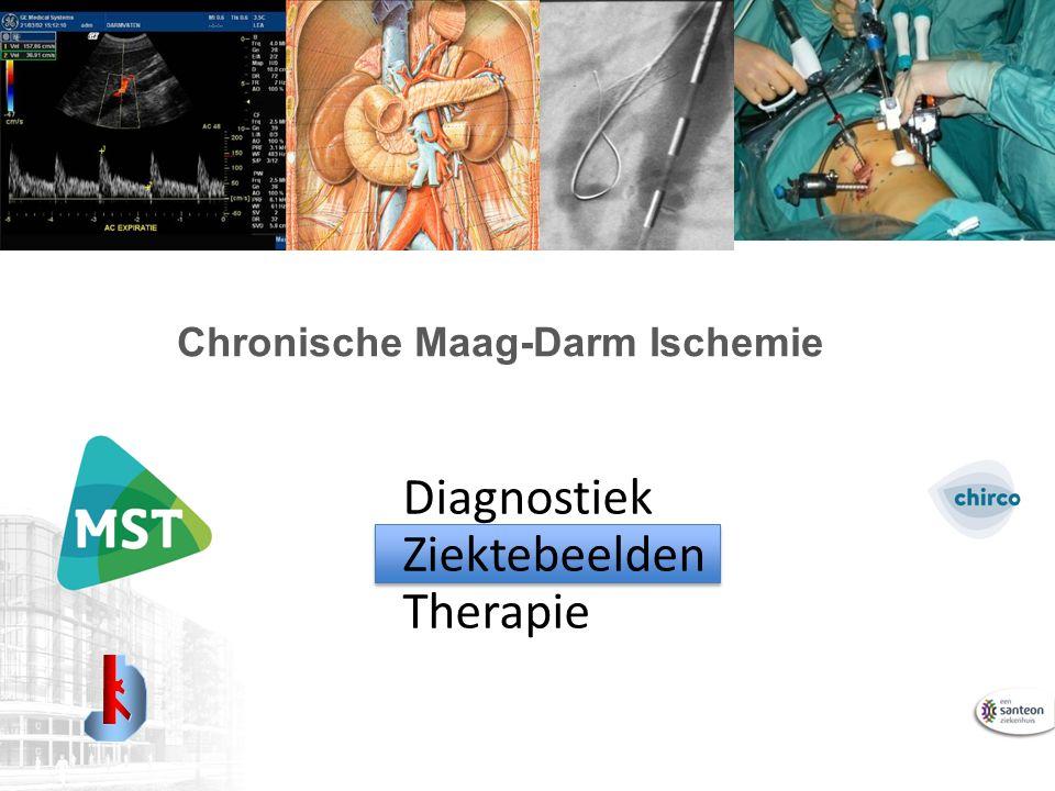 Chronische Maag-Darm Ischemie Diagnostiek Ziektebeelden Therapie
