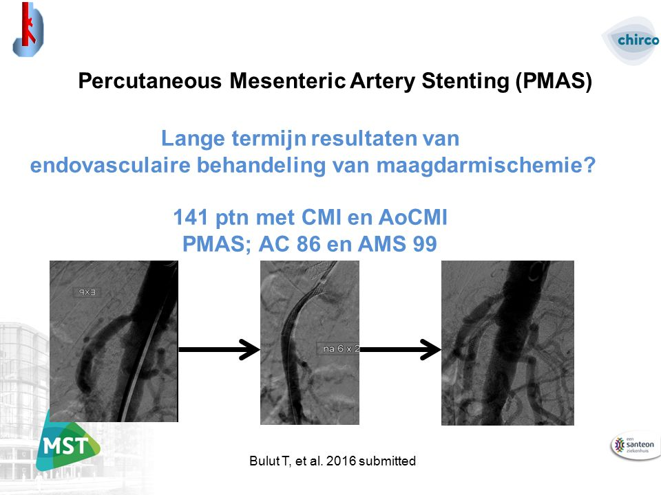 Bulut T, et al. 2016 submitted Percutaneous Mesenteric Artery Stenting (PMAS) Lange termijn resultaten van endovasculaire behandeling van maagdarmisch