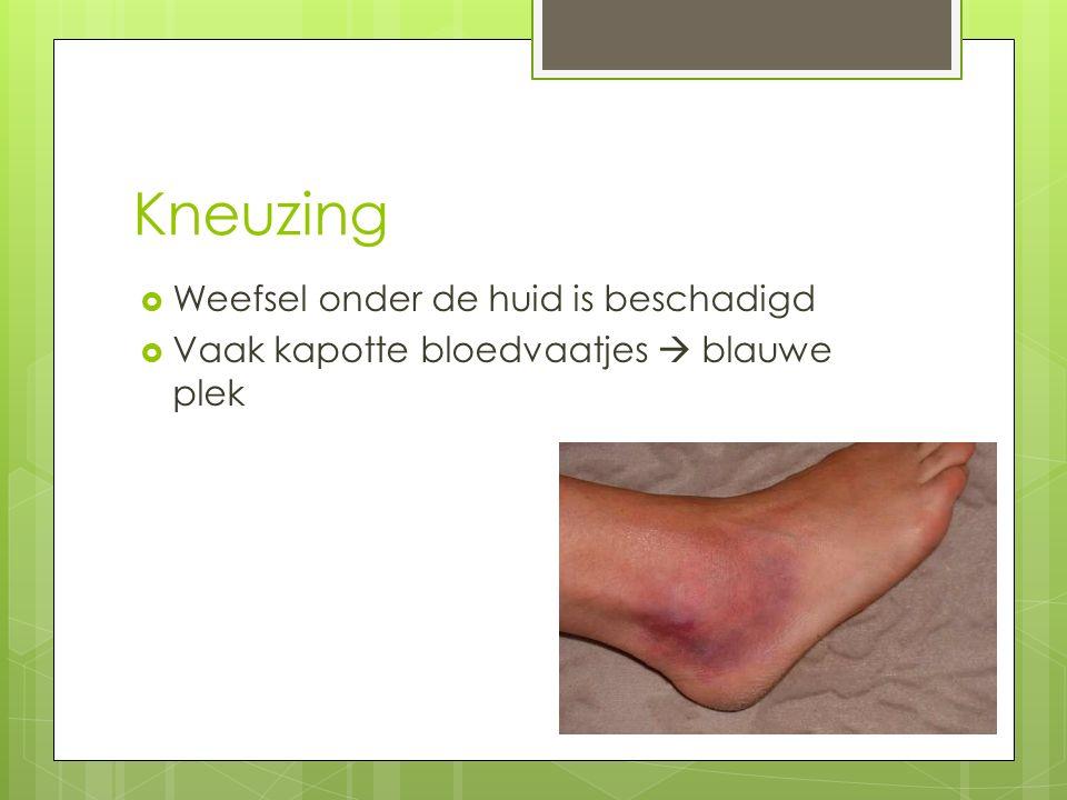 Kneuzing  Weefsel onder de huid is beschadigd  Vaak kapotte bloedvaatjes  blauwe plek