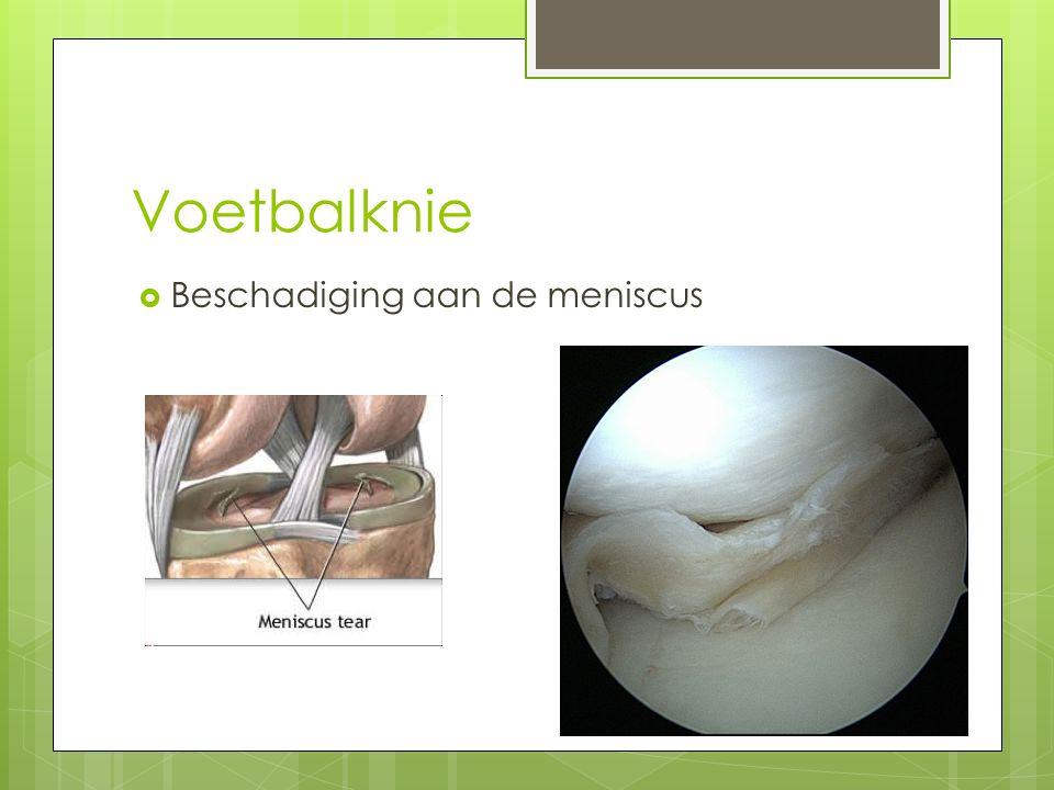 Voetbalknie  Beschadiging aan de meniscus