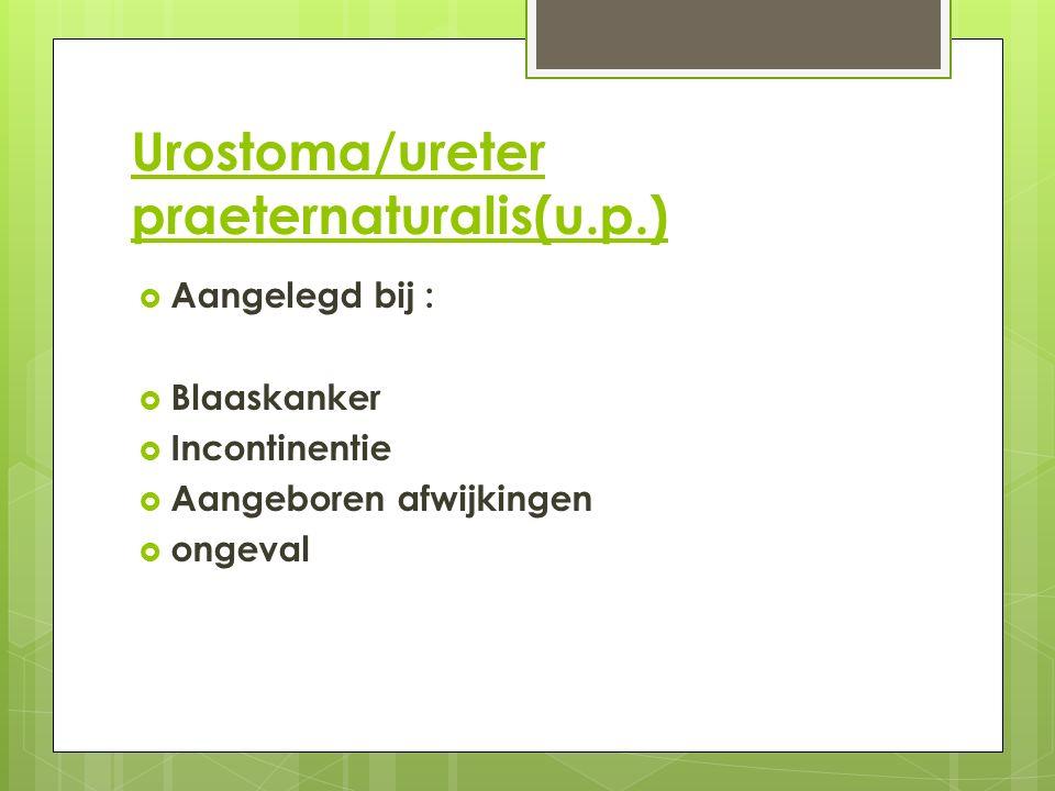 Urostoma/ureter praeternaturalis(u.p.)  Aangelegd bij :  Blaaskanker  Incontinentie  Aangeboren afwijkingen  ongeval