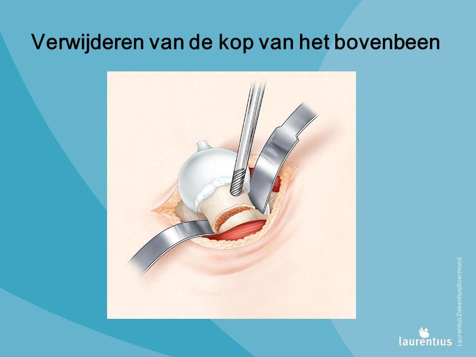 Verwijderen van de kop van het bovenbeen