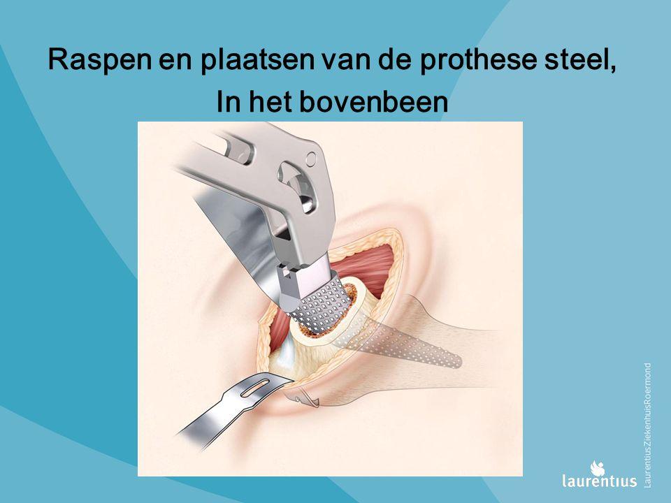 Raspen en plaatsen van de prothese steel, In het bovenbeen