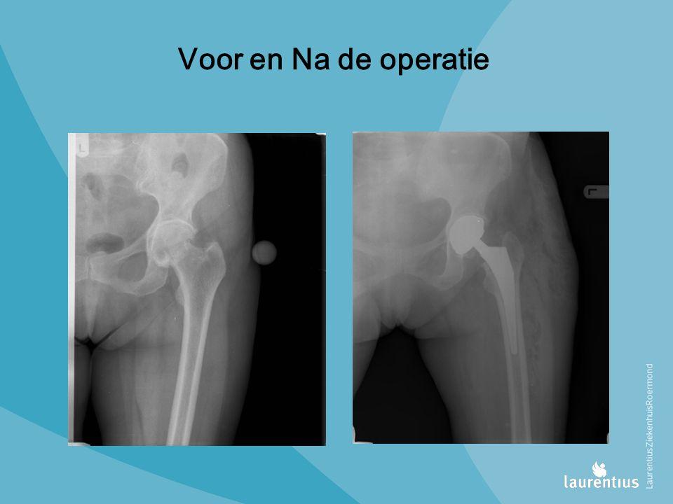 Voor en Na de operatie