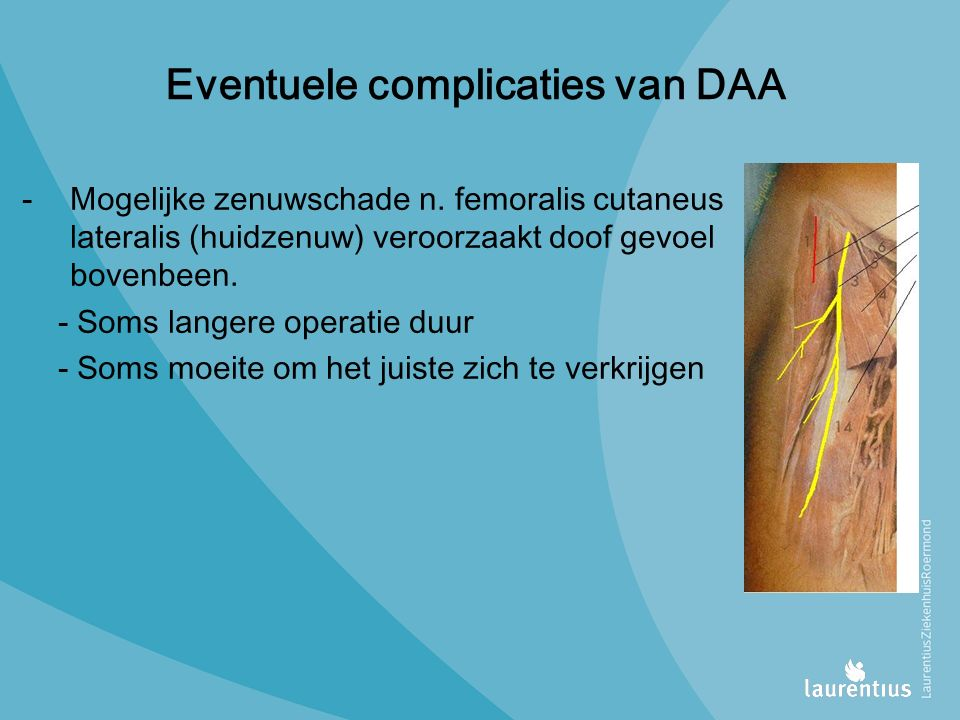 Eventuele complicaties van DAA -Mogelijke zenuwschade n.