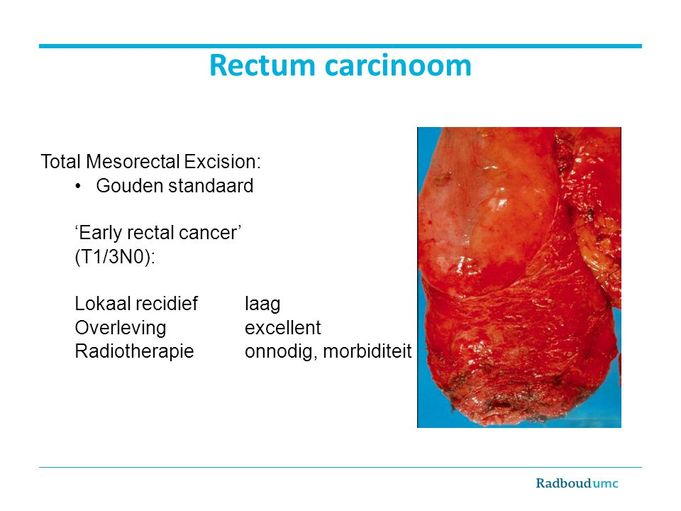 Rectum carcinoom Total Mesorectal Excision: Gouden standaard 'Early rectal cancer' (T1/3N0): Lokaal recidief laag Overleving excellent Radiotherapie onnodig, morbiditeit