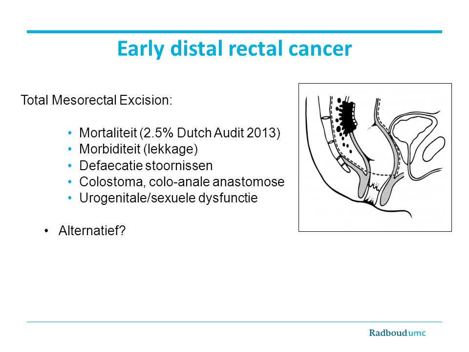 Early distal rectal cancer Total Mesorectal Excision: Mortaliteit (2.5% Dutch Audit 2013) Morbiditeit (lekkage) Defaecatie stoornissen Colostoma, colo-anale anastomose Urogenitale/sexuele dysfunctie Alternatief?