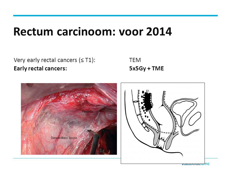 Rectum carcinoom: voor 2014 Very early rectal cancers (≤ T1): TEM Early rectal cancers:5x5Gy + TME