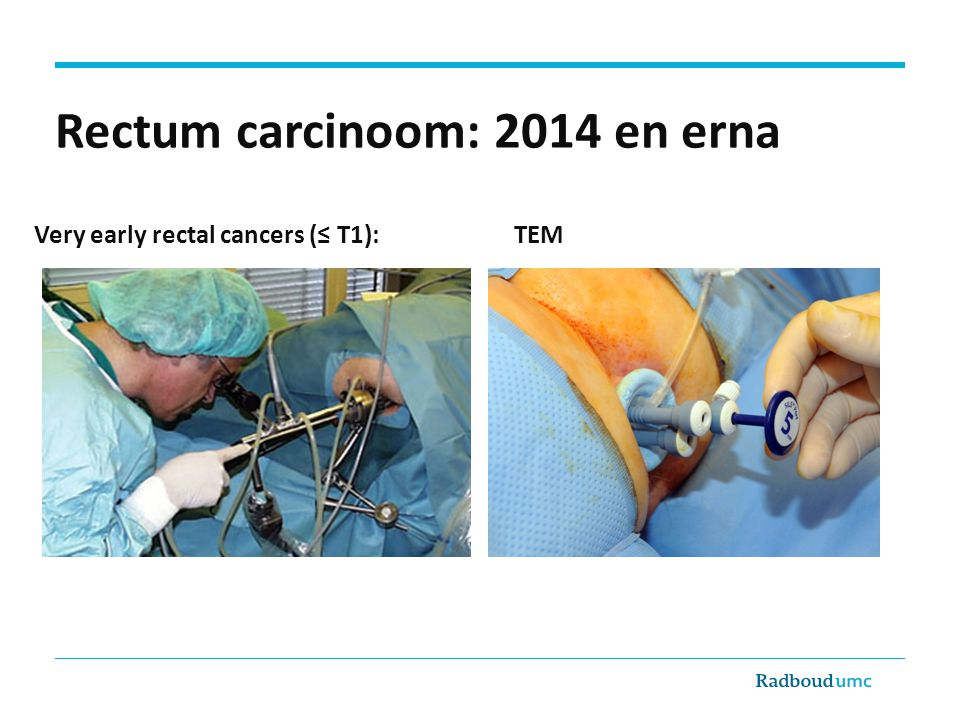 Rectum carcinoom: 2014 en erna Very early rectal cancers (≤ T1): TEM