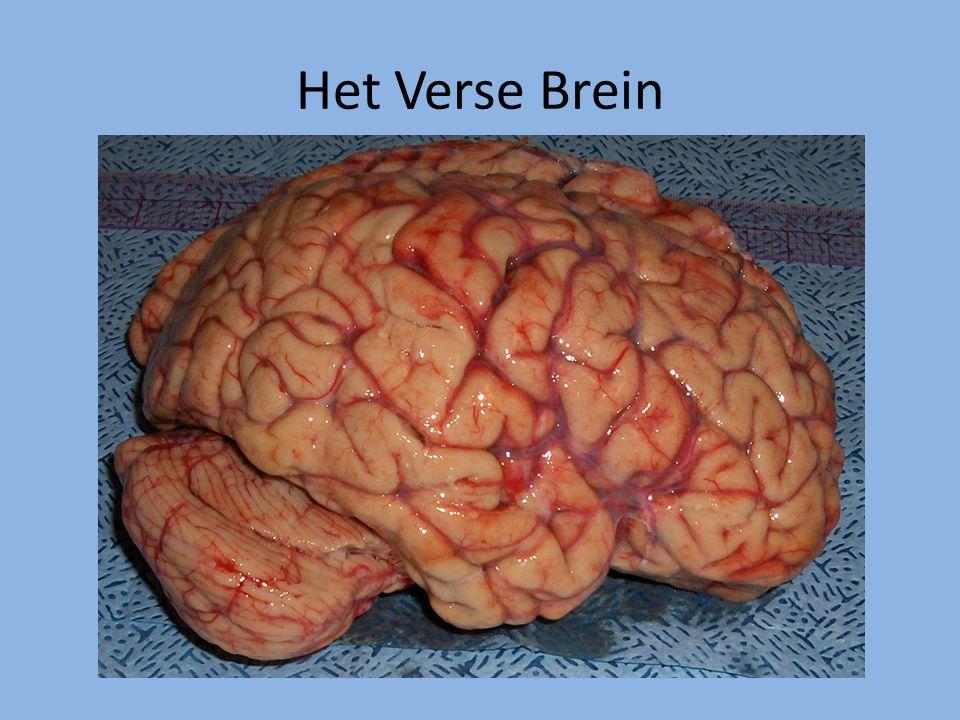 Het Verse Brein