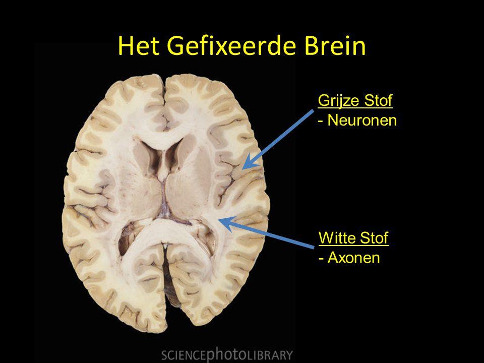 Het Gefixeerde Brein Grijze Stof - Neuronen Witte Stof - Axonen