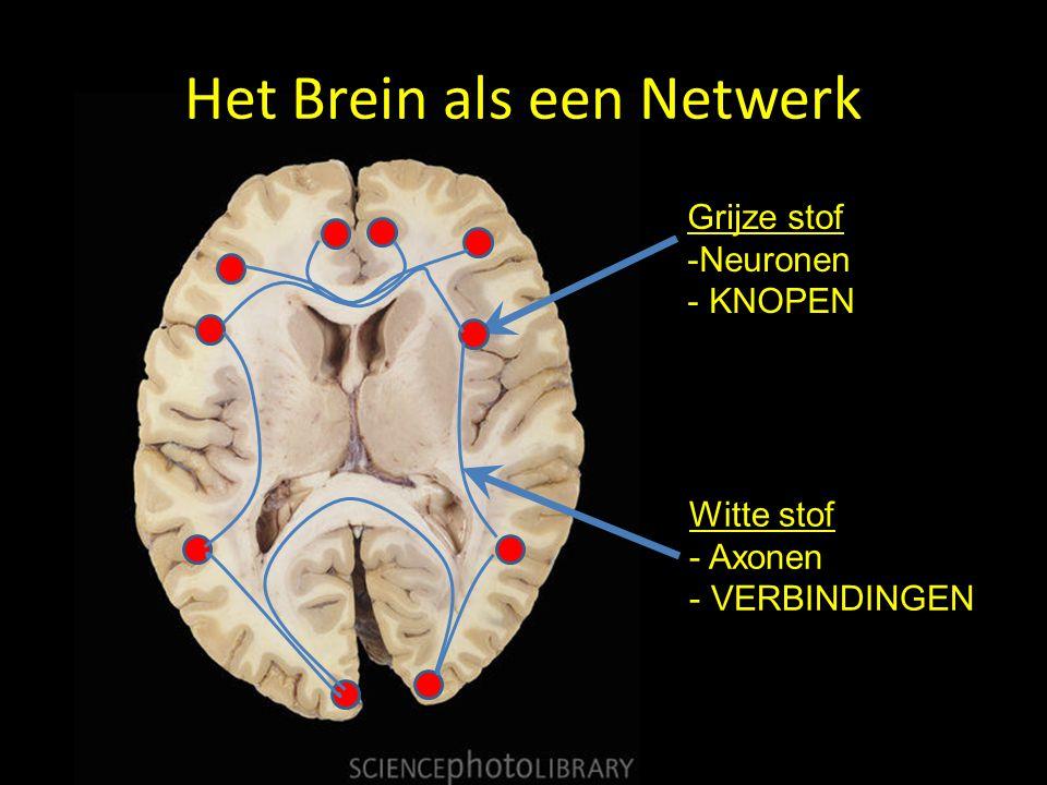 Het Brein als een Netwerk Grijze stof -Neuronen - KNOPEN Witte stof - Axonen - VERBINDINGEN