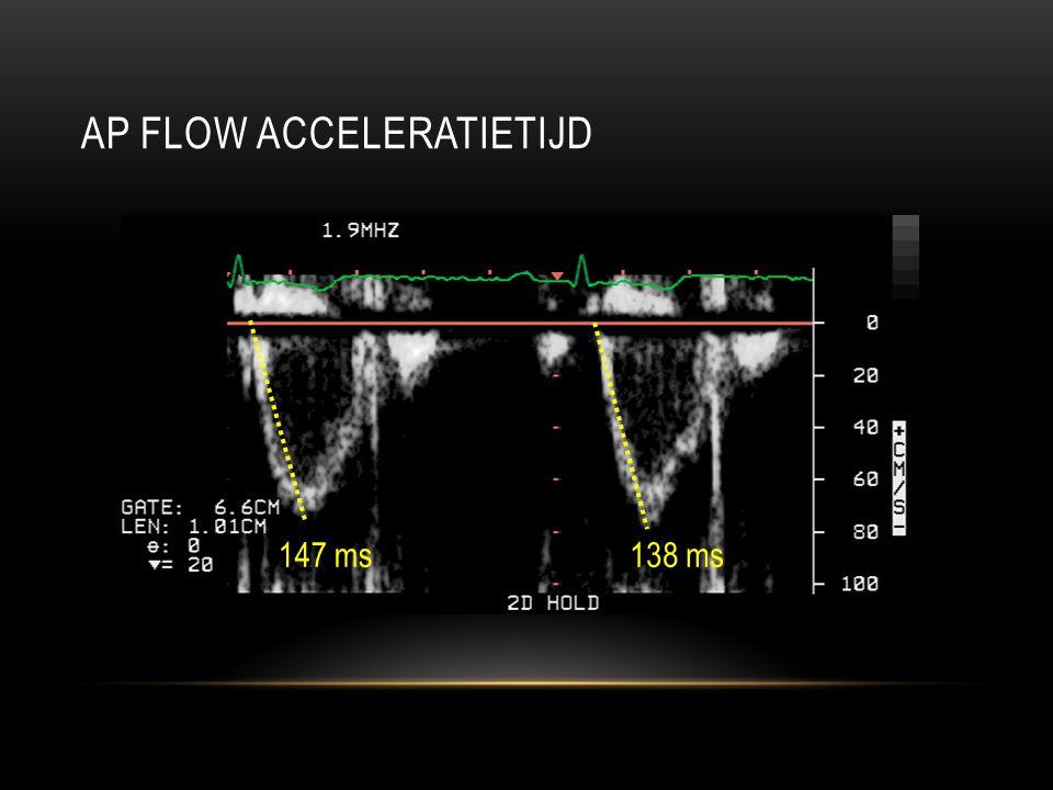 AP FLOW ACCELERATIETIJD 147 ms138 ms