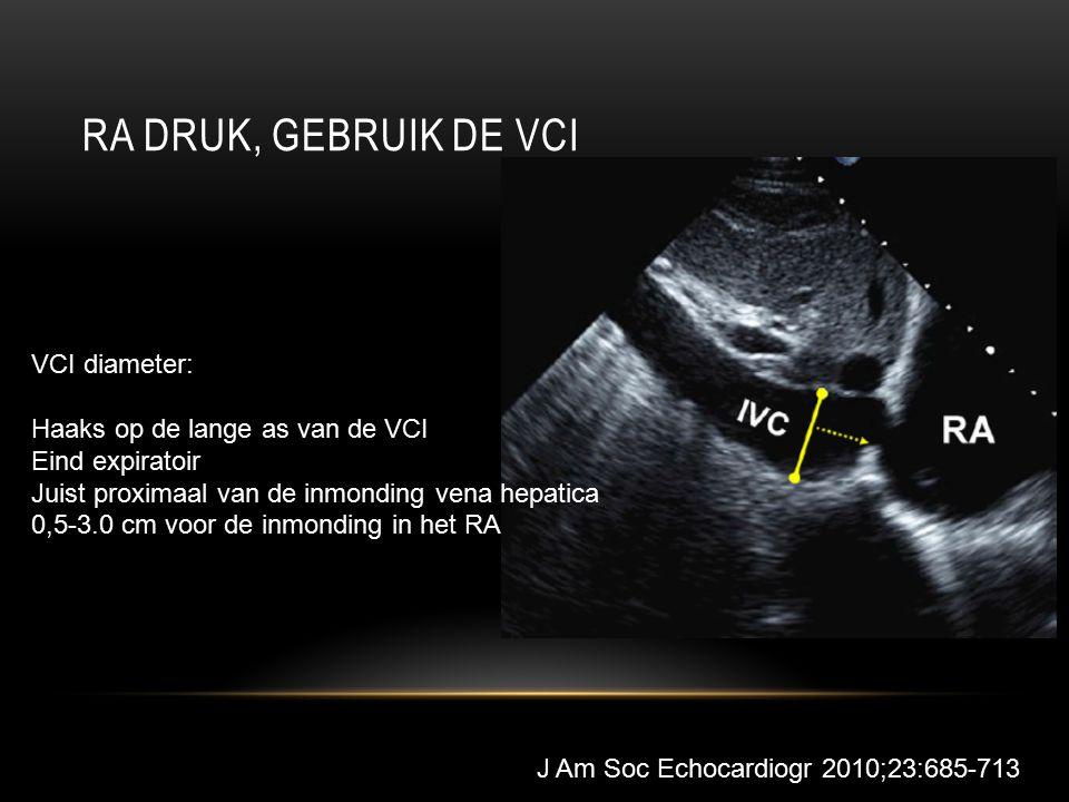 RA DRUK, GEBRUIK DE VCI VCI diameter: Haaks op de lange as van de VCI Eind expiratoir Juist proximaal van de inmonding vena hepatica 0,5-3.0 cm voor de inmonding in het RA J Am Soc Echocardiogr 2010;23:685-713