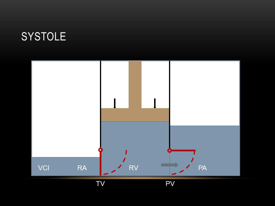 SYSTOLE RAVCIPARV TVPV