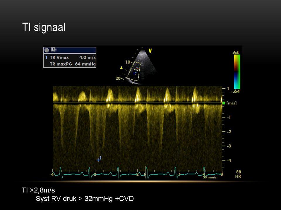TI signaal TI >2,8m/s Syst RV druk > 32mmHg +CVD