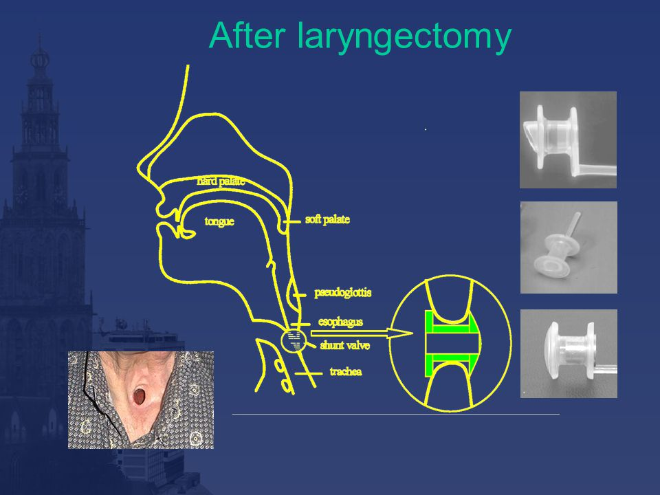 After laryngectomy