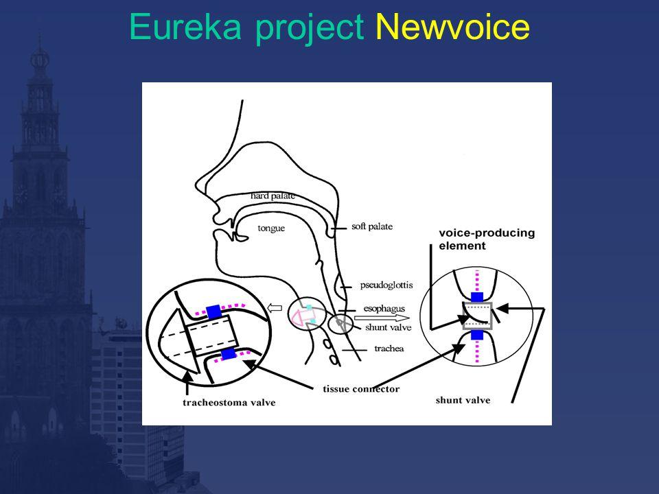 Eureka project Newvoice