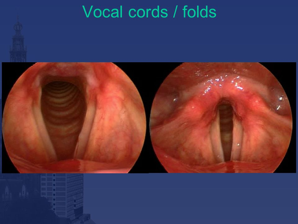 Vocal cords / folds