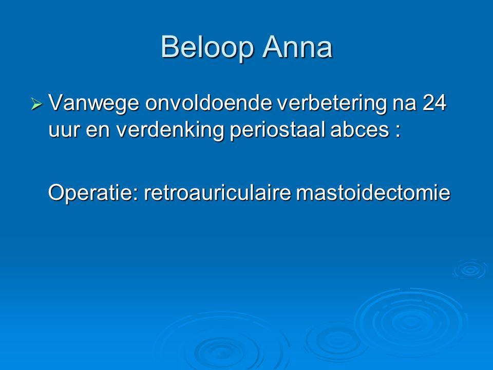Beloop Anna  Vanwege onvoldoende verbetering na 24 uur en verdenking periostaal abces : Operatie: retroauriculaire mastoidectomie Operatie: retroauri