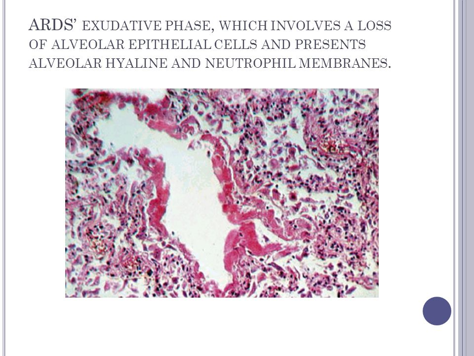 ARDS' EXUDATIVE PHASE, WHICH INVOLVES A LOSS OF ALVEOLAR EPITHELIAL CELLS AND PRESENTS ALVEOLAR HYALINE AND NEUTROPHIL MEMBRANES.