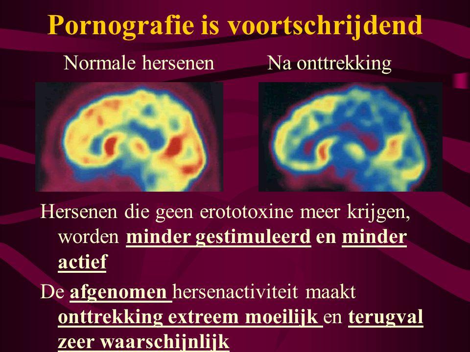 Normale hersenenNa onttrekking Hersenen die geen erototoxine meer krijgen, worden minder gestimuleerd en minder actief De afgenomen hersenactiviteit m