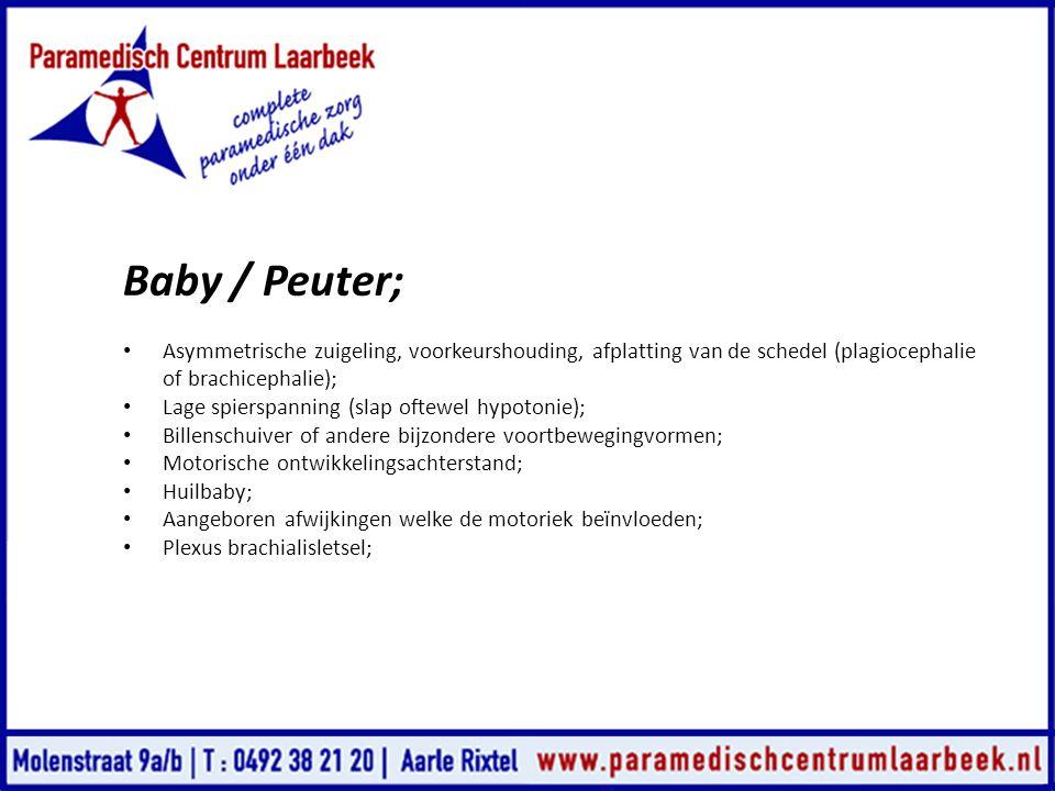 Baby / Peuter; • Asymmetrische zuigeling, voorkeurshouding, afplatting van de schedel (plagiocephalie of brachicephalie); • Lage spierspanning (slap o