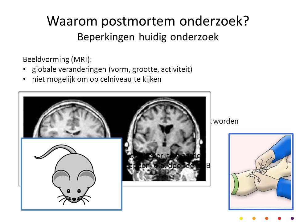 Postmortem: de missing link? MRI DNA DierNHB-Psy