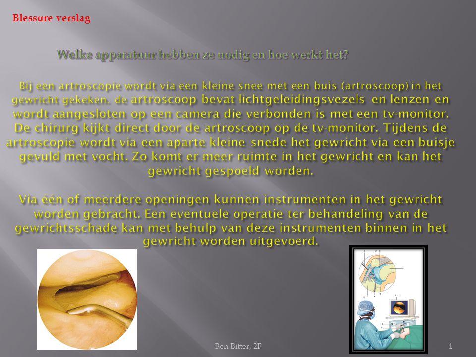 Blessure verslag 4 Bij een artroscopie wordt via een kleine snee met een buis (artroscoop) in het gewricht gekeken.