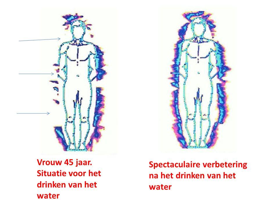 Vrouw 45 jaar. Situatie voor het drinken van het water Spectaculaire verbetering na het drinken van het water