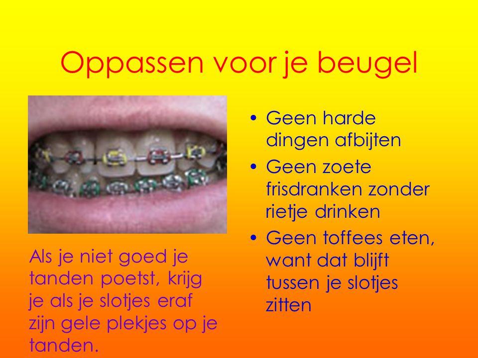 Tanden poetsen met slotjes