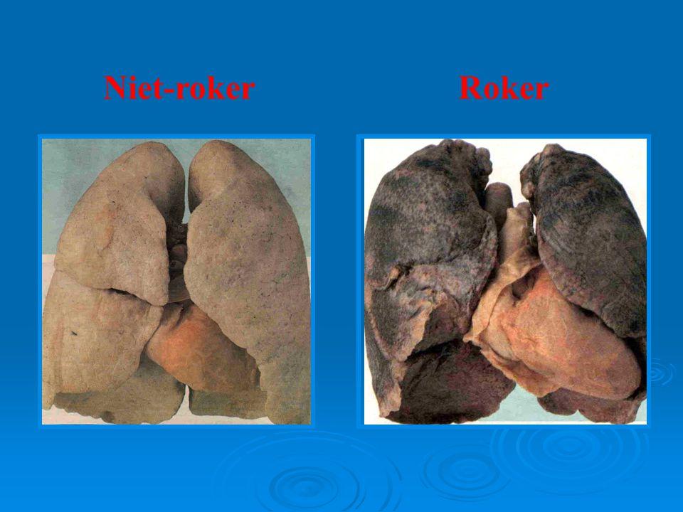 Niet-rokerRoker