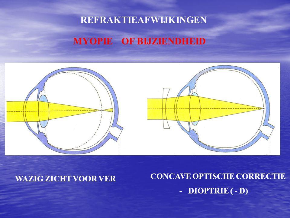 REFRAKTIEAFWIJKINGEN MYOPIEOF BIJZIENDHEID WAZIG ZICHT VOOR VER CONCAVE OPTISCHE CORRECTIE - DIOPTRIE ( - D)