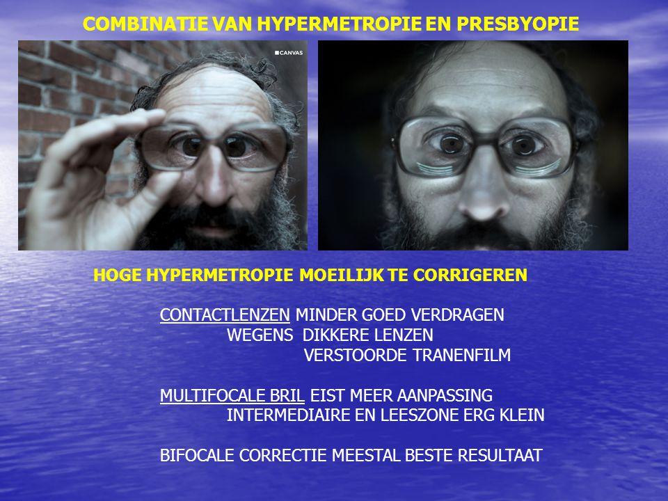 COMBINATIE VAN HYPERMETROPIE EN PRESBYOPIE HOGE HYPERMETROPIE MOEILIJK TE CORRIGEREN CONTACTLENZEN MINDER GOED VERDRAGEN WEGENS DIKKERE LENZEN VERSTOORDE TRANENFILM MULTIFOCALE BRIL EIST MEER AANPASSING INTERMEDIAIRE EN LEESZONE ERG KLEIN BIFOCALE CORRECTIE MEESTAL BESTE RESULTAAT