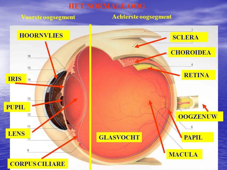 REFRAKTIEAFWIJKINGEN HYPERMETROPIE OF VERZIENDHEID WAZIG ZICHT VOOR DICHT/VER COMPENSATIE DOOR ACCOMMODATIE CONVEXE OPTISCHE CORRECTIE + DIOPTRIE (+ D)