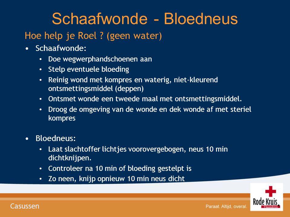 Schaafwonde - Bloedneus Hoe help je Roel ? (geen water) •Schaafwonde: • Doe wegwerphandschoenen aan • Stelp eventuele bloeding • Reinig wond met kompr