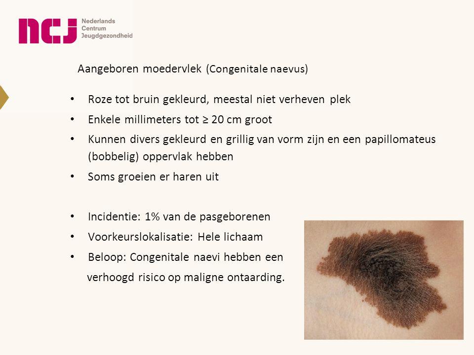 Aangeboren moedervlek (Congenitale naevus) • Roze tot bruin gekleurd, meestal niet verheven plek • Enkele millimeters tot ≥ 20 cm groot • Kunnen diver
